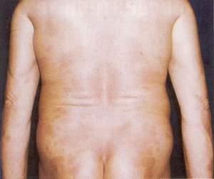 ПУВА-терапия - 5 недели лечения