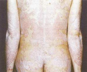СФТ-терапия - до лечения